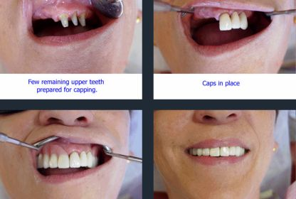 27 Best Partial Dentures Lake Worth Florida Images On