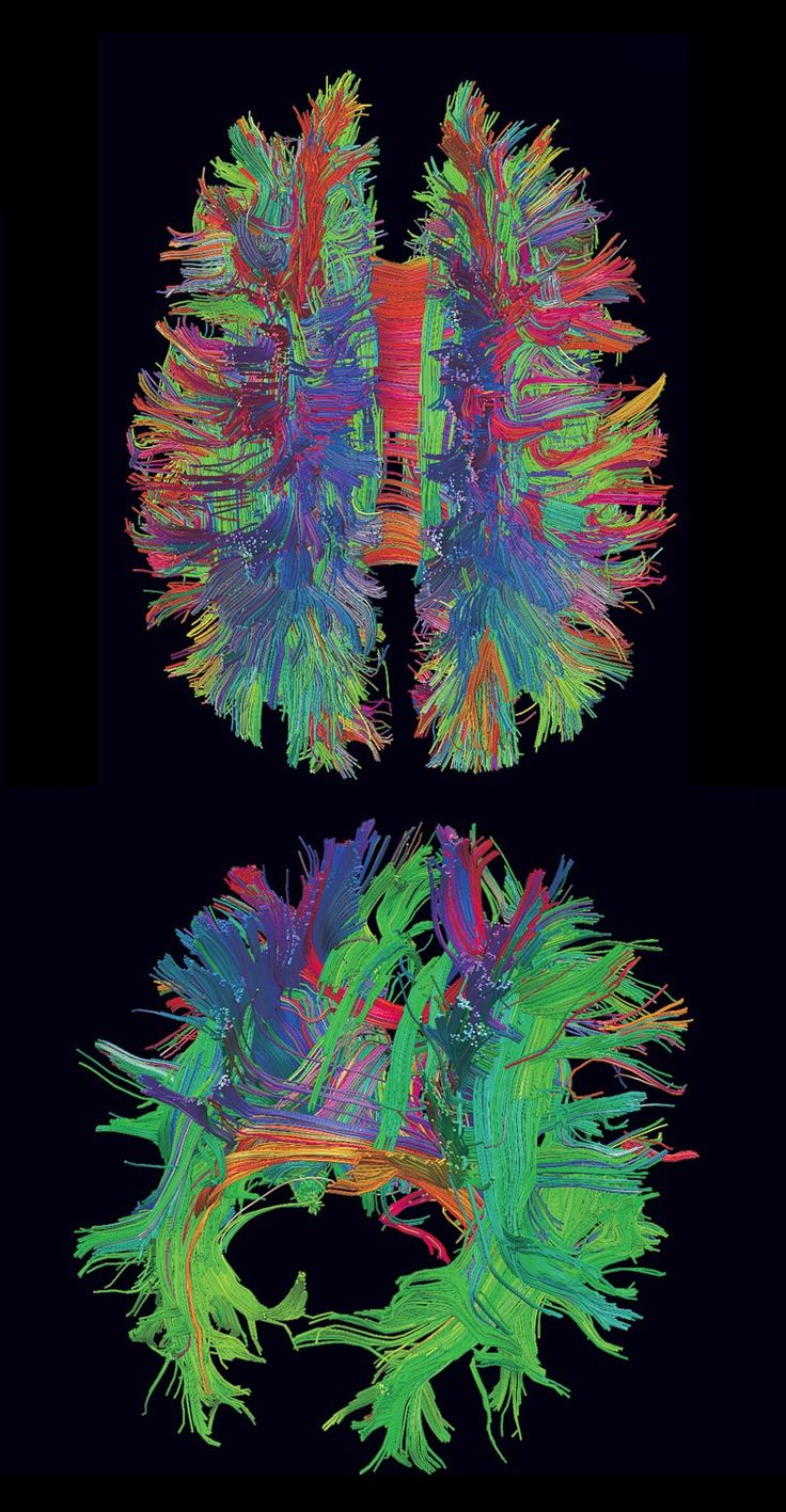 3D reconstruction from diffusion MRI data showing a tractography of a live human brain.