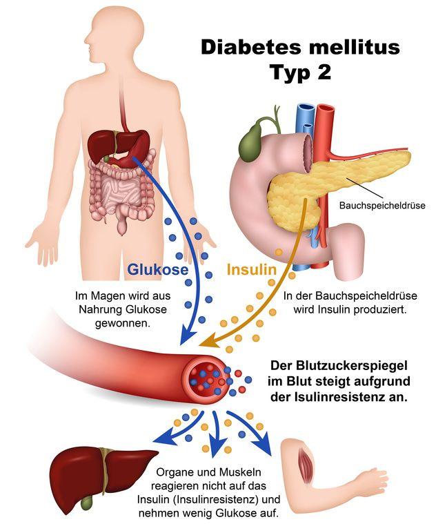 Was ist Diabetes mellitus? Alle Infos auf Miriam Krier