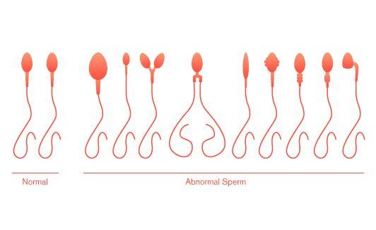 Goddess Abnormal sperm quality