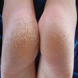 Home Remedies For Cracked Heels That Are Quite Effective - Eve's Special
