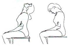 Intervención fisioterápica en la Espondilitis Anquilosante - Artículo de Fisioterapia