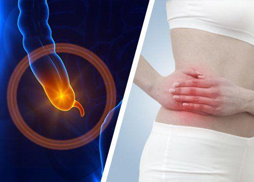 7 síntomas de apendicitis que debes conocer - Mejor con Salud