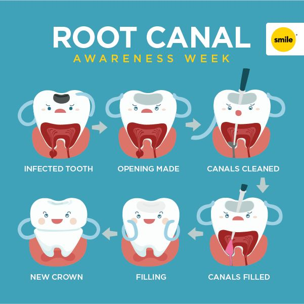 Today is the beginning of Root Canal Awareness Week. Do you really need it? Now is a great time to find out.