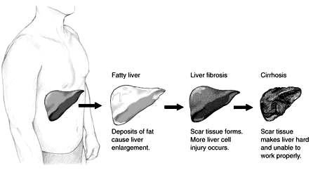 Fatty Liver Diet Supplements, Herbs and Foods along with Insights into the Causes of Fatty Liver