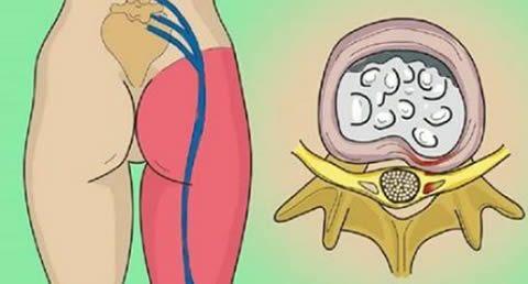 L'esercizio che allevia il dolore sciatico in pochissimi minuti
