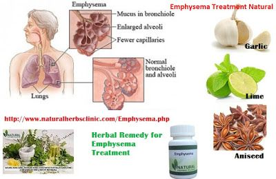 Best Natural Cure For Emphysema