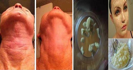 rimedio rughe aglio
