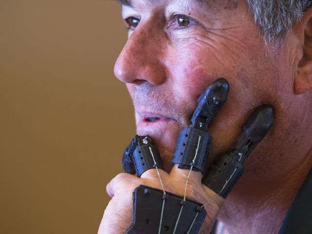 Man creates DIY prosthetic device after amputation