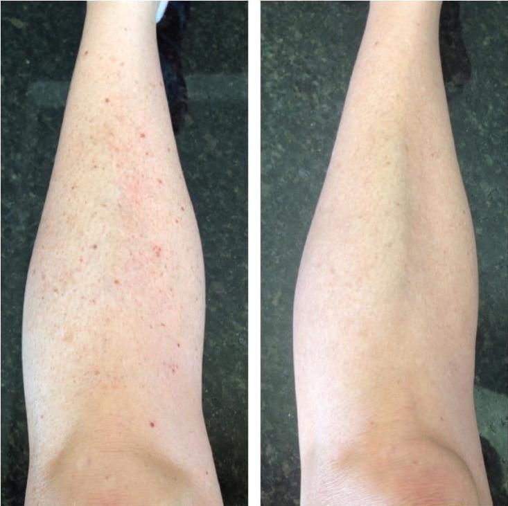 This ladies wanted to have clear skin on her legs without all the freckles. She was extremely happy with this result after just 1 treatment and so are we!! https://cosmedicalskinsolutions.com.au/treatments/skin-rejuvenation/ipl-photo-rejuvenation/
