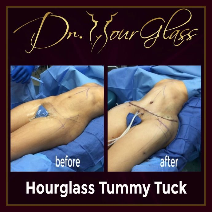 If you're looking for a procedure that will remove the excess fat in your abdomen and at the same time sculpt your body into a feminine shape, then why not check out the Hourglass Tummy Tuck procedure by Dr. Hourglass. Check out this outstanding result after the procedure: