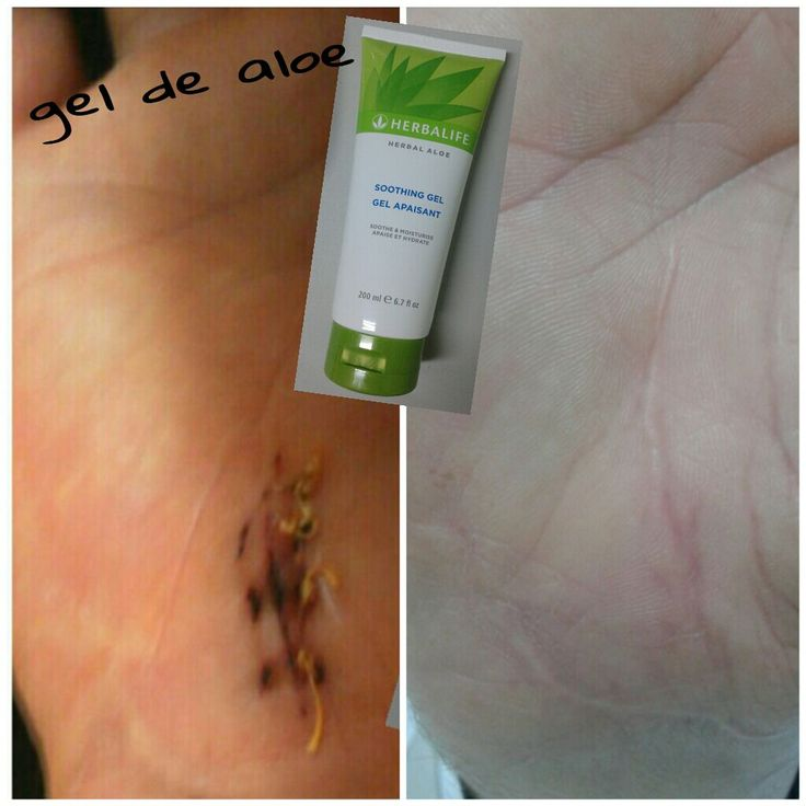 Resultados de la aplicación del Gel de Aloe en un corte en una mano.