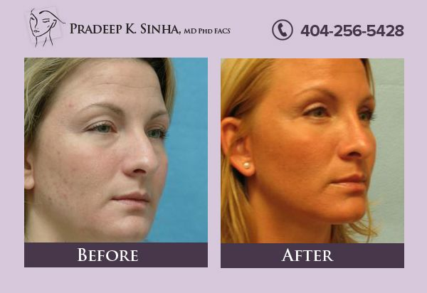 Get the excellent treatment and the best cost for Nose Surgery in Atlanta at Atlanta Institute For Facial Aesthetic Surgery.  Rhinoplasty is done by an experienced cosmetic surgeon Dr. Pradeep Sinha & that too at a very reasonable cost. https://www.facialaestheticsurgery.com/rhinoplasty-atlanta-nose-reshaping-surgery
