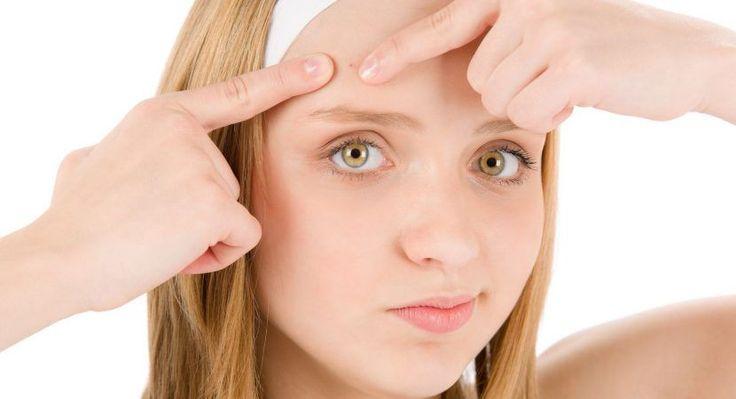 Cómo Eliminar un Grano de la Cara con Remedios Caseros Rápido, Fácil y Efectivo http://blgs.co/06C489 #cicatricesdeacne