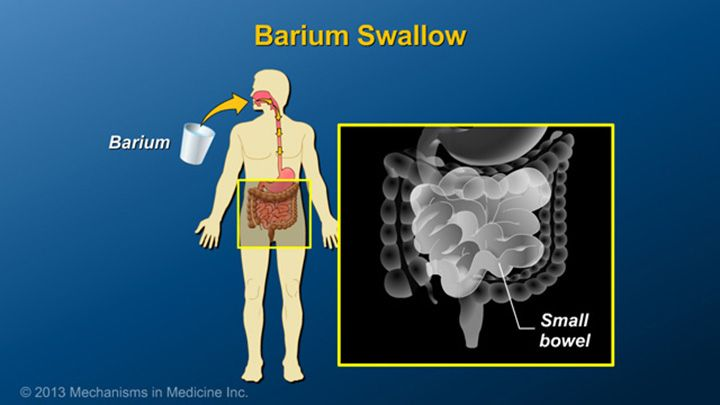 A barium examination allows visualization of the entire small bowel.slide show: diagnosing ibd. no single test can diagnose or rule out inflammatory bowel disease ibd; however, several tools and tests, described in this slide show, can be used together to help diagnose ibd, determine the extent of disease, and distinguish between crohn's disease and ulcerative colitis. they can also help predict the probable course and outcome of ibd.