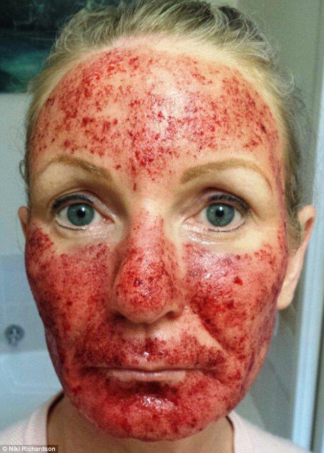 Woman Left With Blistered Skin Three Months After Laser