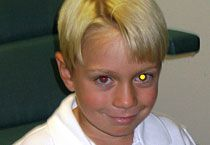 A white or yellowish glow, called leukocoria, in one eye could signal a serious eye condition or disease, including cataract, Coats' disease, eye infection and retinal detachment.  A white or yellow reflex (eye shine) also could be a warning sign of a rare but serious childhood cancer called retinoblastoma.  If you notice anything unusual about your child's eyes in photos, always notify your eye doctor.  #eyes