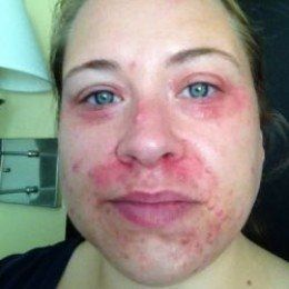 This is my journey of overcoming Perioral Dermatitis or Periorificial Dermatitis (POD). I am searching to find natural cures for anyone else looking for natural answers, as well as for my self (yes, that is my modeling picture head shot). I will let...