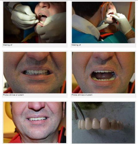 full ceramic bridge design, dental patient,prosthodontics,DDS Tiberiu Cazan