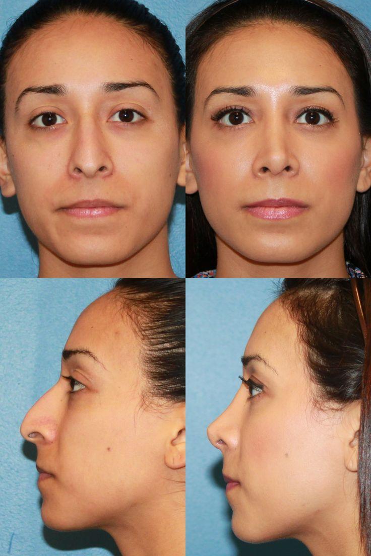 681 Best Images About Plastic Surgery On Pinterest