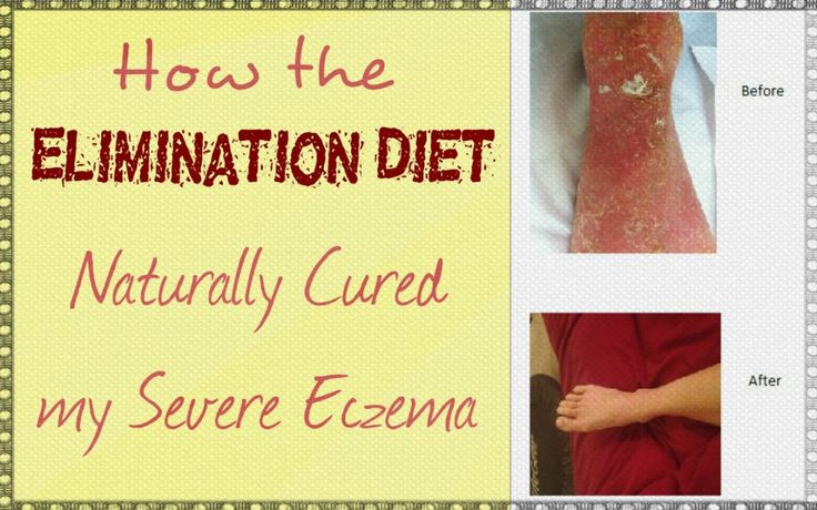 How the elimination diet helped cure my eczema - full blog post at http://www.primephysiquenutrition.com