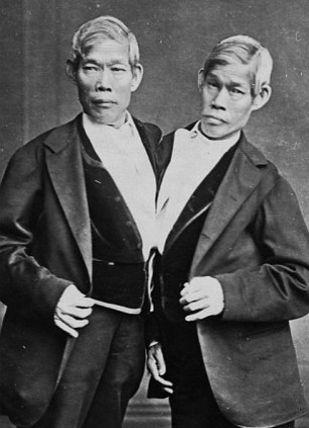 Gêmeos siameses se exibiam em show de horrores http://r7.com/WlB6