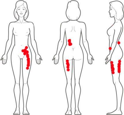 Everywhere I experience endometriosis pain.