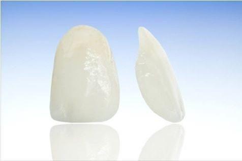 Faţetele dentare – indicaţii Protetica este ramura stomatologiei care vine în ajutorul pacientului în momentul în care stomatologia restaurativă directă nu poate să refacă sau să îmbunătăţească aspectul arcadelor. Pacienţii se pot prezenta la medicul stomatolog din diferite motive dar, cel mai des, primează estetica şi ineficienţa masticaţiei. Faţetele dentare reprezintă soluţii terapeutice ce se …