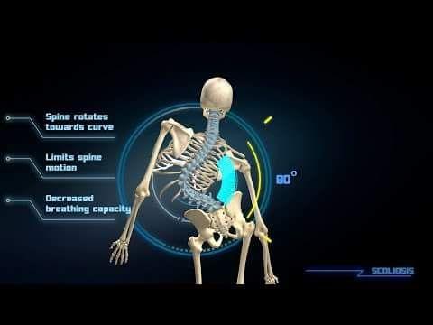 www.warsztat-ortopedyczny.pl – Indywidualnie wykonywane protezy kończyn górnych i dolnych, aparaty ortopedyczne