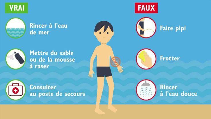 Savez-vous vraiment quoi faire (ou pas) en cas de piqûre de méduse ? #Santé #Vacances #été #plage