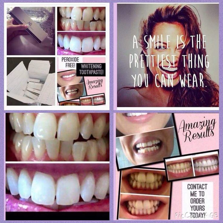 ~Fluoride Whitening toothpaste ~Peroxide and harsh chemical free ~Brightens up your teeth after first uses ~Suitable for Children of 6 years and over. ~Contact me!