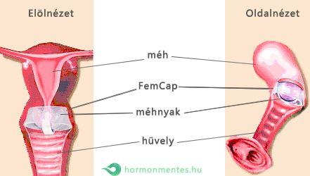 femcap felhelyezés