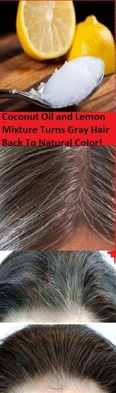 RECIPEFOR PREMATURE GRAYING OF HAIR  Ingredients  3 teaspoons of fresh lemon juice50 ml. of organic coconut oil  Preparation  Mix three teaspoons of lemon juice with some coconut oil.Then, apply this mixture on your hair and massage it into your scalp.Leave it on for at least an hour.Wash it out and then shampoo your hair..  Repeat this process every week and you will be amazed by the results!