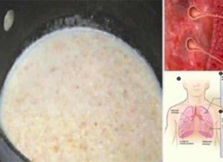 Dit simpel drankje verwijdert slijm uit de longen en zal direct een boost aan je immuunsysteem geven.
