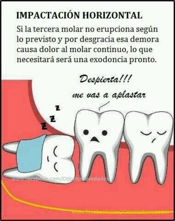 los terceros molares o muelas del juicio. normalmente hay que retirarlos para que no afecte a los dientes.que están a un lado