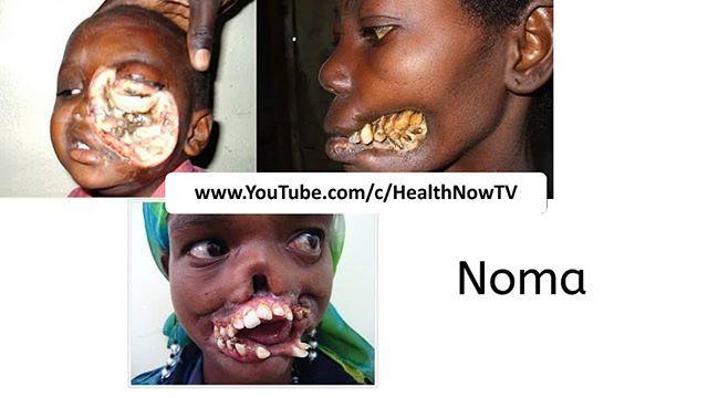 Noma #medical #conditioning #disease #doctor #shocking #syndrome #healthnowtv #noma