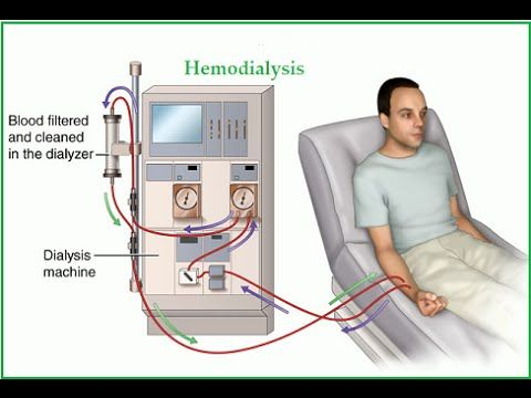 Kidney Disease Symptoms and Treatments : Kidney Transplant & Dialysis For Kidney Disease - YouTube