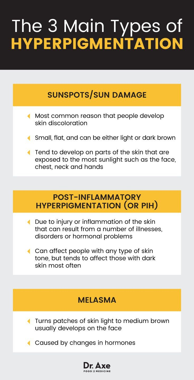 2af62befd68fde17153673ea6920b4d9 - How To Get Rid Of Post Inflammatory Hyperpigmentation Naturally