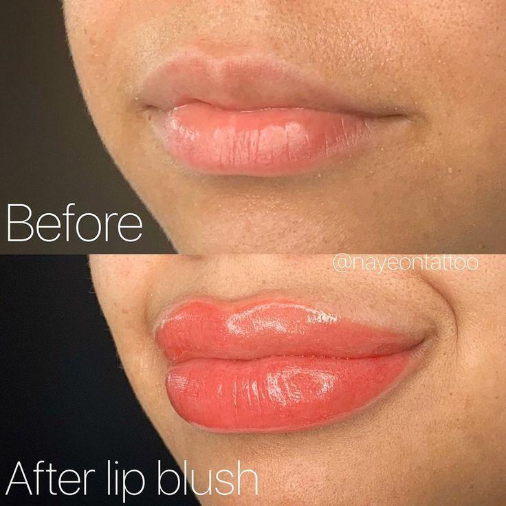 2af63c55649e3fea0f5aa575392ce34f - How To Get Swelling To Go Down On Lip