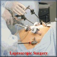 LAP BAND INCISION PICTURES