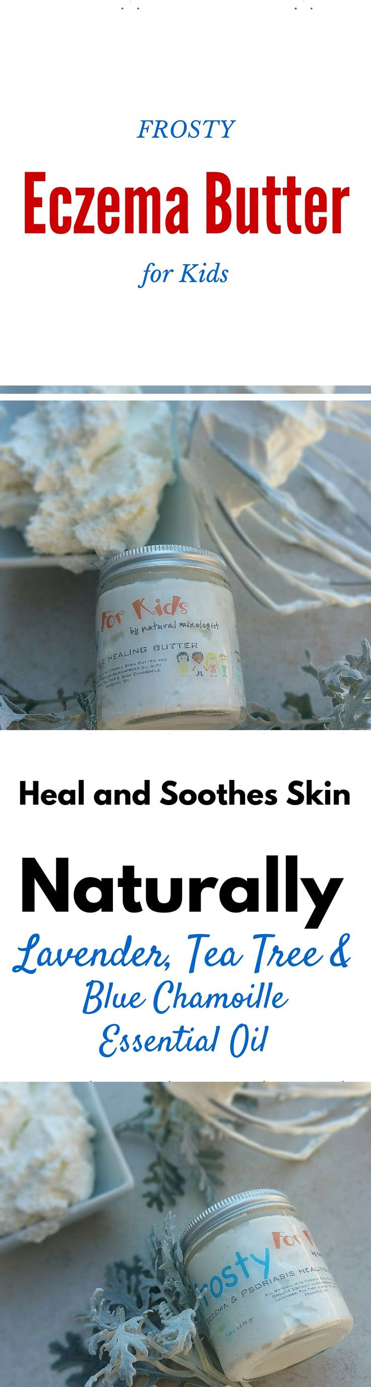All Natural Healing Butter To Heal Kids Sensitive Skin Made With Lavender,  Tea Tree