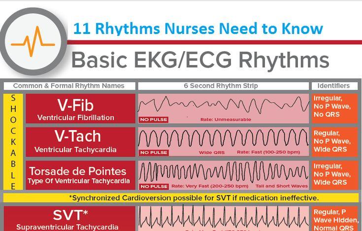 11 Rhythms Nurses Need to Know. 1: V-Fib: Ventricular Fibrillation 2: V-Tach: Ventricular Tachycardia 3: