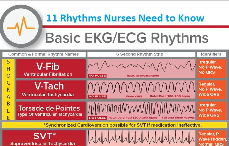 Rhythm Strip Cheat Sheet HD Wallpapers