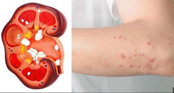 Ledviny jsou životně důležité orgány a nacházejí se přímo pod hrudním košem. Jsou zodpovědné za očistu a detoxikaci, denně filtrují 10 až 150 litrů krve.