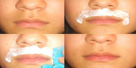 Para as mulheres, o pelo fino facial que sai sobre os lábios é realmente irritante. Pode até ser quase imperceptível, mas elas sentem que têm um bigode. Que feio! Embora realmente não se veja muito, sabem que está lá e fariam quase qualquer coisa para o remover. Calma, meninas! Hoje trazemos-lhes um fantástico remédio caseiro …