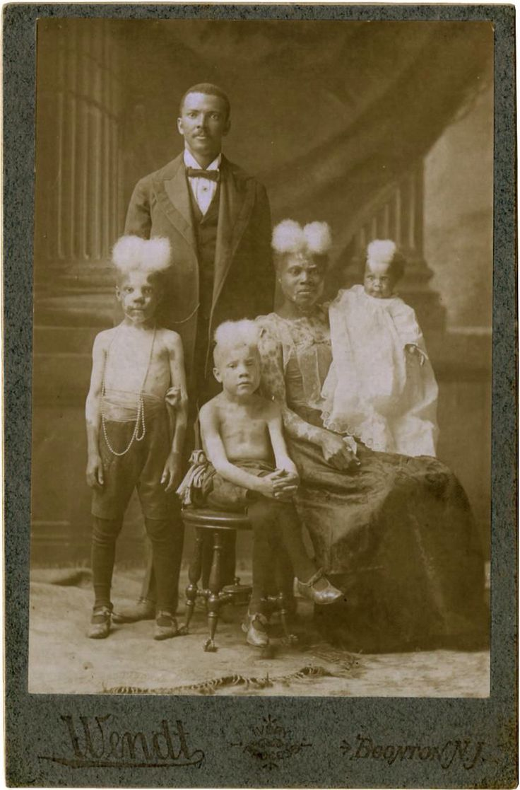 """A family of sideshow entertainers displaying the symptoms of piebaldism billed as """"Zebra People"""""""