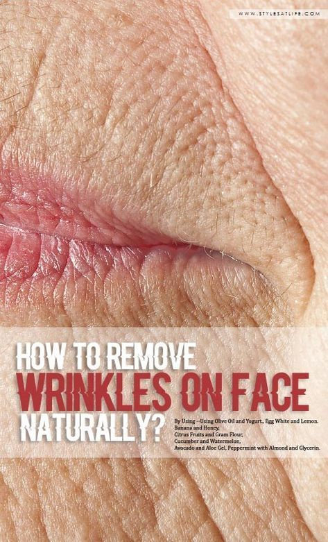 How To Take away Wrinkles On Face Naturally