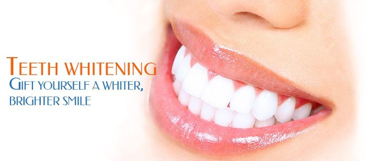 It is always better to get it done from the professionals such as Tooth Whitening Specialist of Richmond where you will get solutions to all of your dental problems and that too with complete satisfaction.