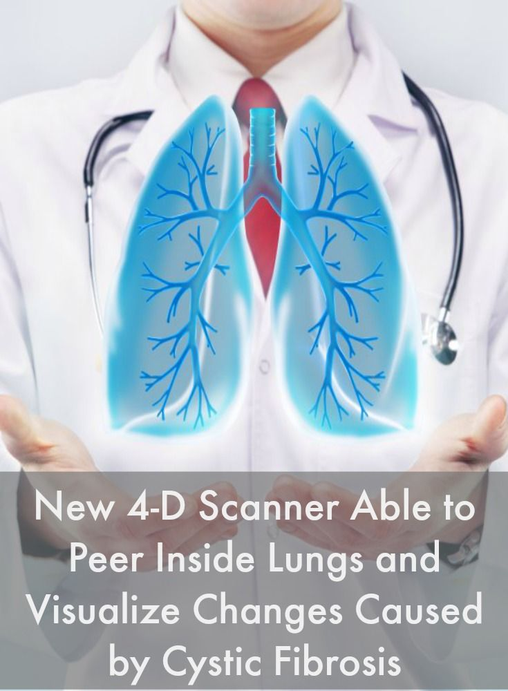 New 4-D Scanner Able to Peer Inside Lungs and Visualize Changes Caused by Cystic Fibrosis #CysticFibrosisNews