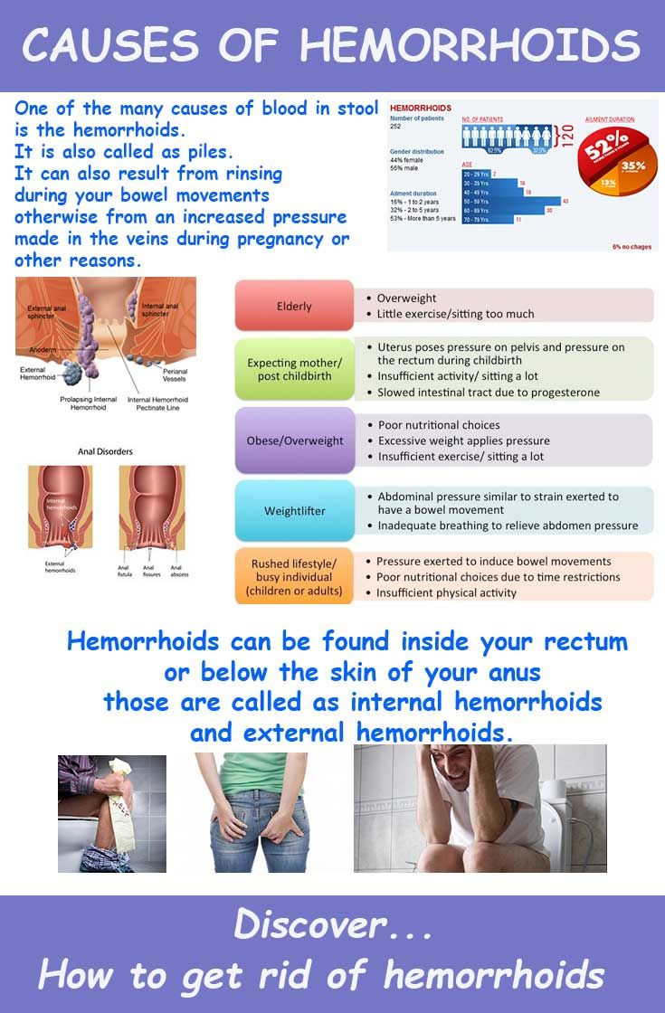 Natural Way To Get Rid Of Hemorrhoids Permanently